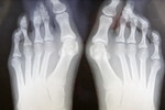 orthopaedic xray of feet