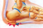 heel spur symptoms