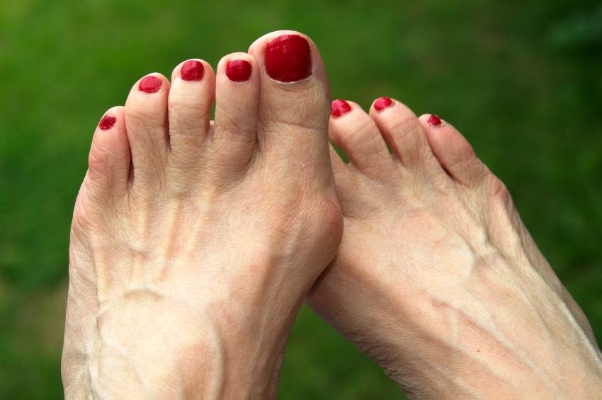 which shoes are best for bunion sufferers