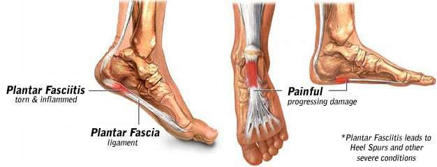 image showing where the first signs of plantar fasciitis occur