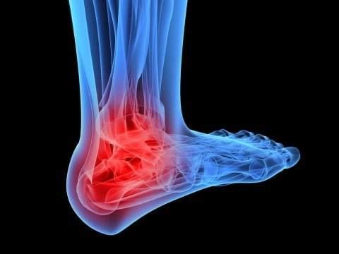 heel support plantar fasciitis shoes