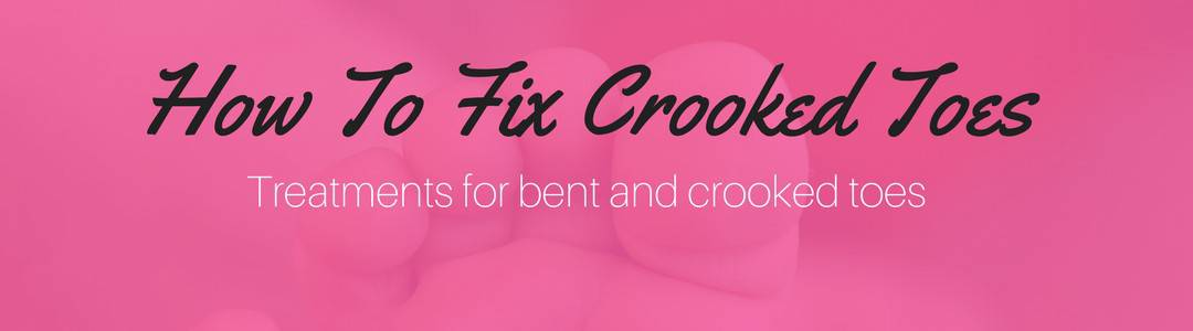 How To Fix Crooked Toes