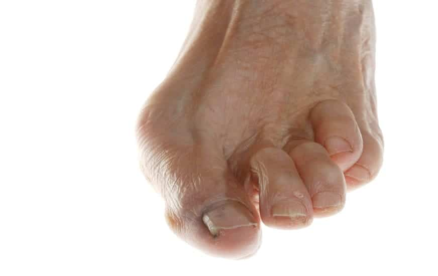 example of hammer toe