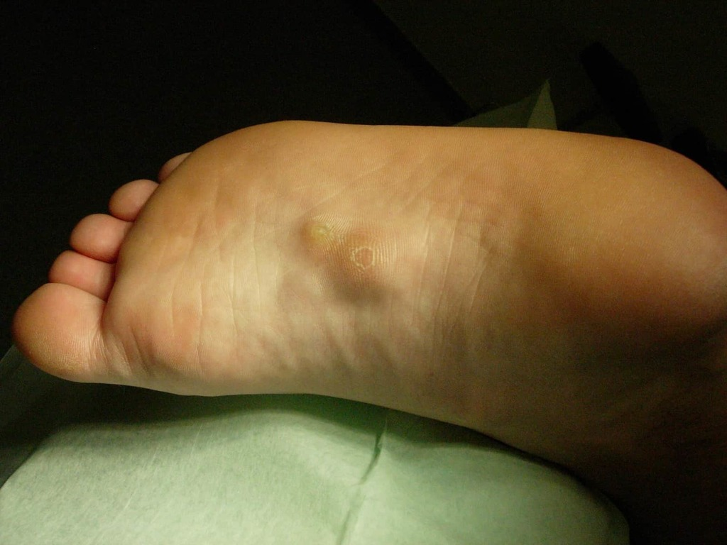 knots in bottom of foot