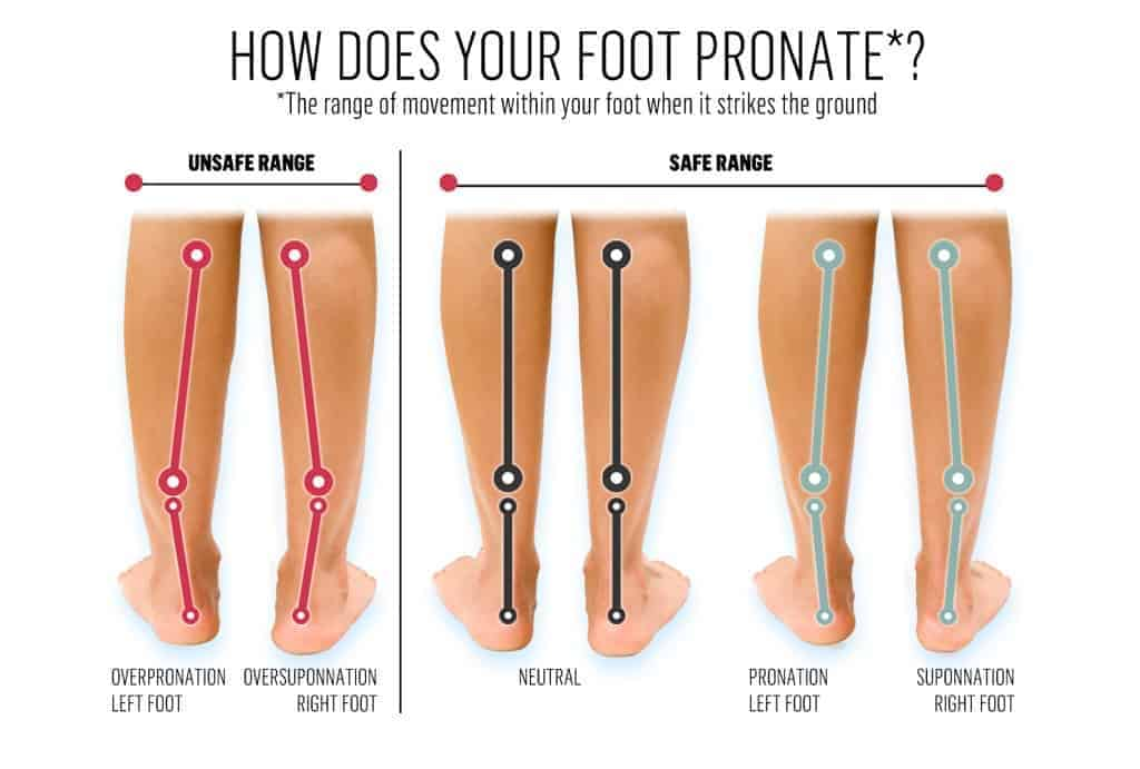 foot pronate supinate examples