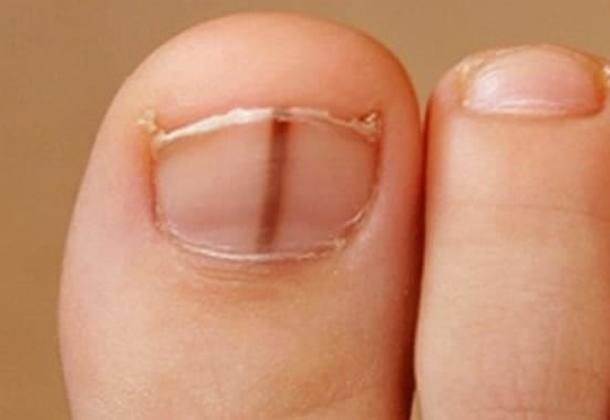 Toenail Subungal Melanoma – Symptoms, Causes and Treatments