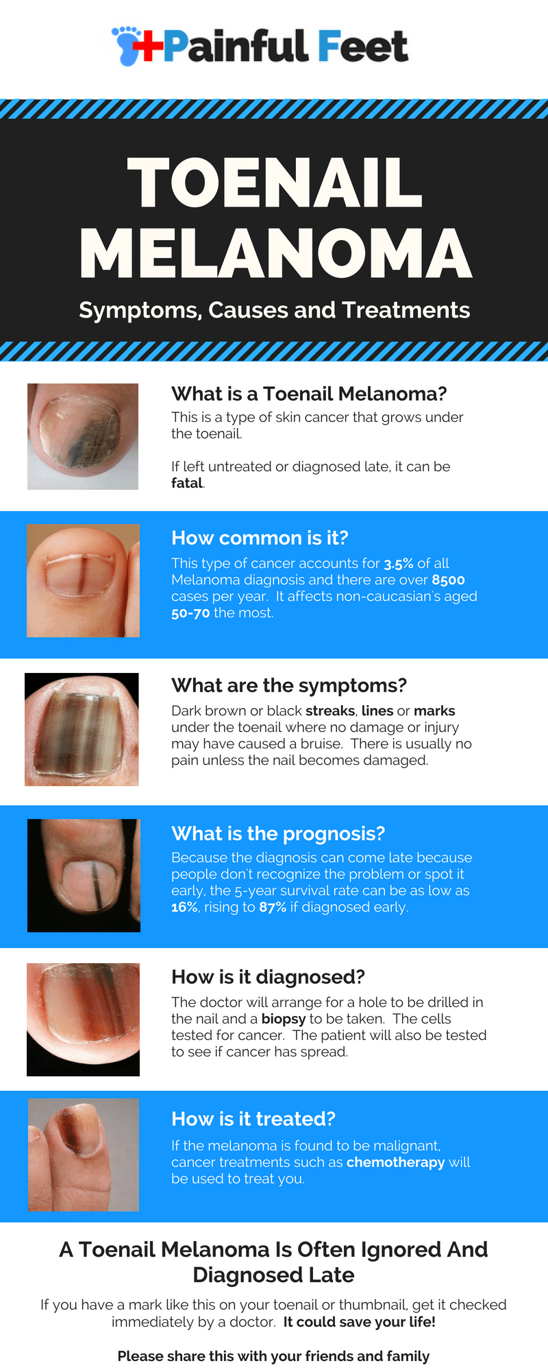 How to Tell If You Have a Toenail Melanoma